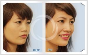 Hình ảnh trước – sau nâng mũi thẩm mỹ