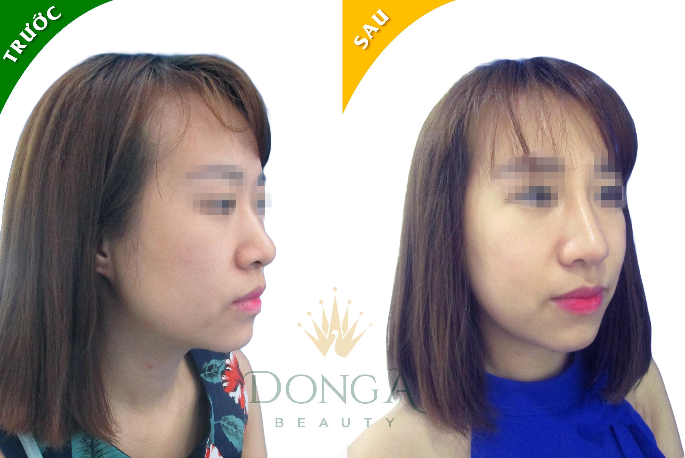 Hình ảnh trước sau thẩm mỹ mũi 1