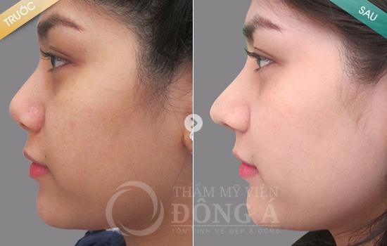 Hình ảnh trước sau thẩm mỹ mũi 3