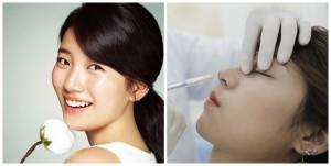 Có nên sửa mũi không?