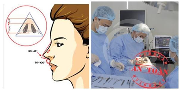 Nâng mũi bọc sụn tự thân đảm bảo an toàn tuyệt đối, không để lại sẹo