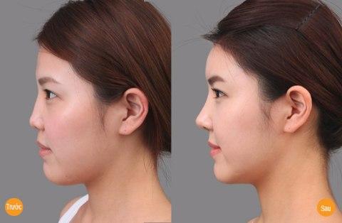 Kết quả nâng mũi tẹt tại TMV Đông Á được duy trì vĩnh viễn