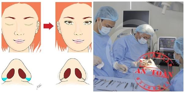 Quy trình phẫu thuật thu gọn cánh mũi an toàn tại TMV Đông Á