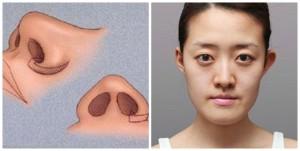 Thu gọn cánh mũi có để lại sẹo không? Giữ được bao lâu?