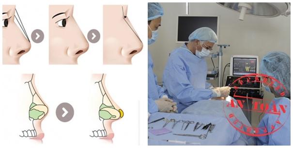 Thay vì cách trang điểm mũi to thì bạn nên chọn nâng mũi để có chiếc mũi thon gọn