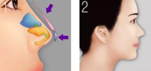 Nâng mũi S-line – kỹ thuật sửa mũi tự nhiên an toàn nhất