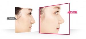 Nâng mũi S-line Dr. Park và nâng mũi S-line có gì khác biệt?