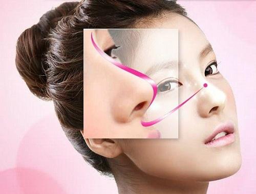 Kết quả nâng mũi đẹp tự nhiên, ổn định lâu dài