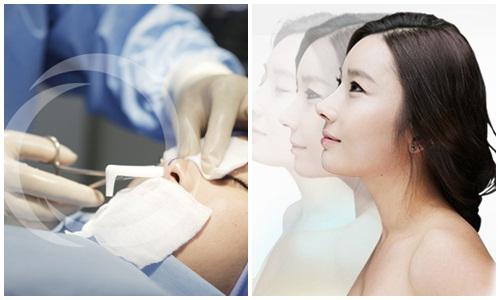 Bác sĩ chỉnh hình nâng mũi S-Line sao cho hài hòa với tổng thể khuôn mặt
