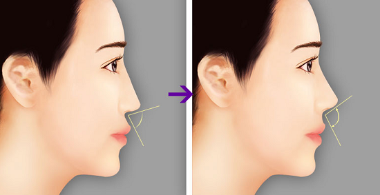 Chất liệu nâng mũi đạt chuẩn sẽ cho dáng mũi đẹp tự nhiên