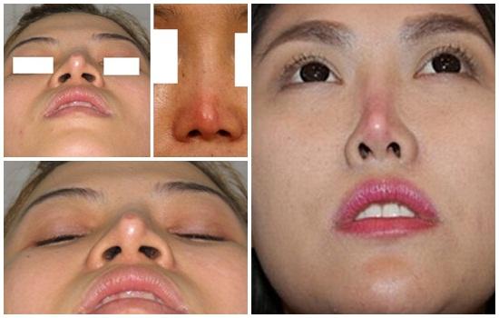 Kết quả của việc sử dụng chất liệu nâng mũi không tương thích