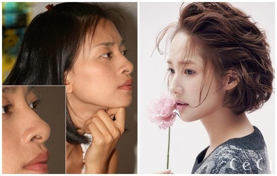 Mũi hếch và cách khắc phục hiệu quả theo bác sĩ Hàn Quốc 2