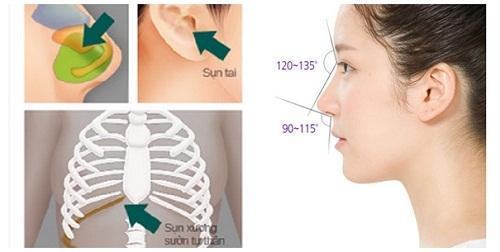 Nâng mũi bằng sụn tự thân sử dụng sụn sườn, sụn tai,...