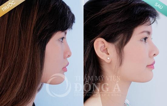Phương pháp biến mũi tẹt thành mũi cao đẹp vĩnh viễn