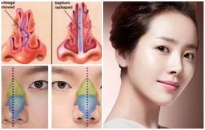 Chỉnh sửa mũi gồ, lệch theo chuẩn đẹp mũi Hàn Quốc