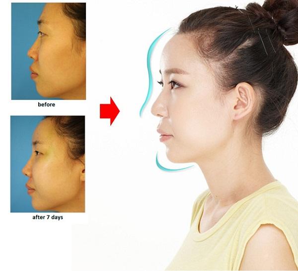 Chỉnh sửa mũi Sline để có tỷ lệ vàng cho khuôn mặt đẹp tự nhiên
