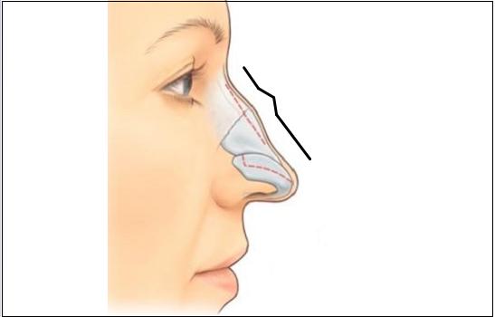 mũi gồ
