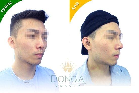 khách hàng phẫu thuật nâng mũi S-line Dr. Park tại Đông Á