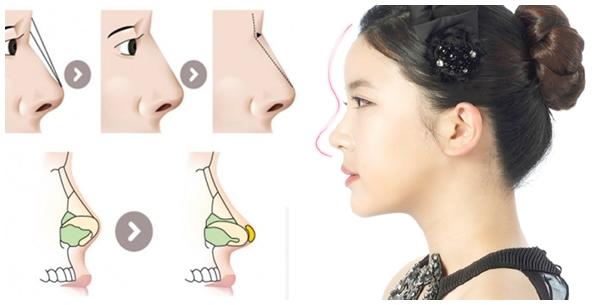 Nâng mũi sụn tự thân hay nhân tạo tốt hơn?