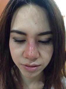 Mũi bị sưng, đỏ sau nâng phải làm sao? – Bác sĩ tư vấn