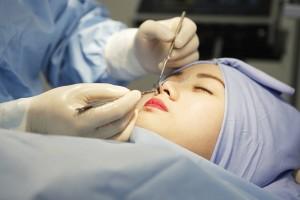 Giải đáp: Phẫu thuật nâng mũi có ảnh hưởng gì không? có đau không?