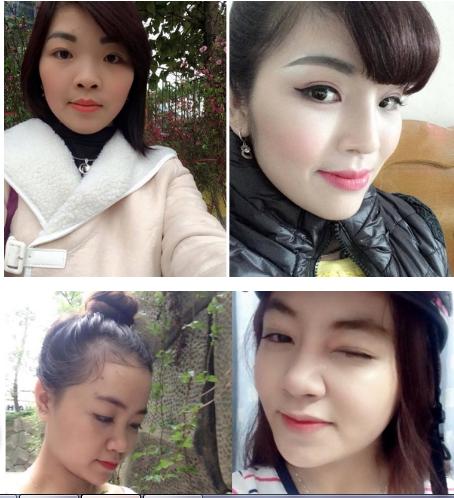 nang-mui-boc-sun-co-nguy-hiem-khong