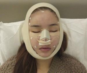 Hướng dẫn từ A – Z cách chăm sóc sau nâng mũi giúp mũi phục hồi nhanh