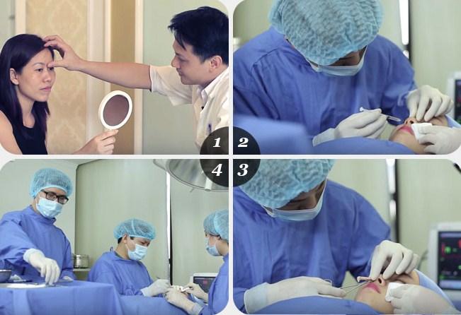 Quy trình phẫu thuật nâng mũi S line dr park tại Đông Á