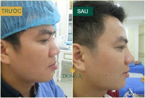 kết quả sửa mũi