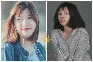 Linh Rin tự tin hơn gấp đôi sau khi nâng mũi SLine Dr Park