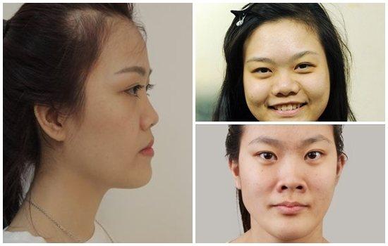 Thu gọn cánh mũi nội soi – khắc phục khuyết điểm dáng mũi