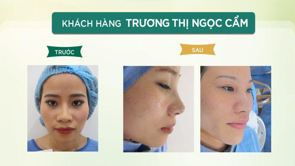 Nâng mũi ở đâu đẹp? Hình ảnh của khách hàng nâng mũi tại Đông Á
