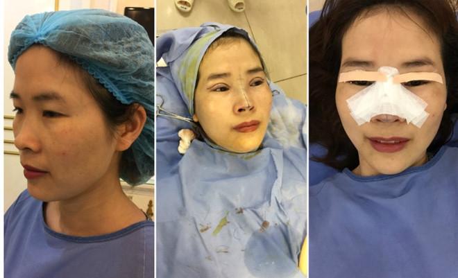 Chị Vân Anh chia sẻ chi tiết các hình ảnh phẫu thuật mắt, mũi của mình.