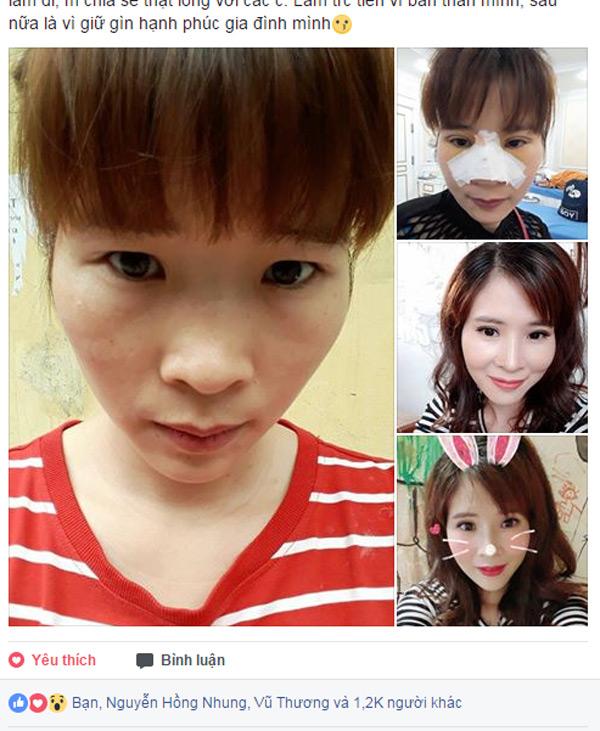 Chị Nguyễn Vân Anh đăng ảnh trước - trong - sau phẫu thuật thẩm mỹ.