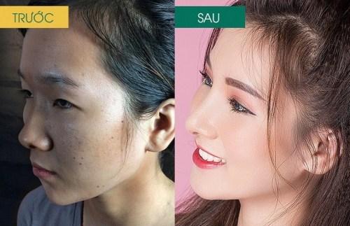 khách hàng nâng mũi tại Đông Á