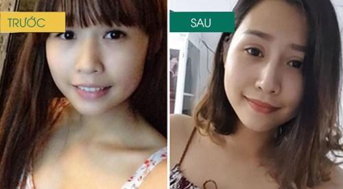 kết quả nâng mũi tại Đông Á
