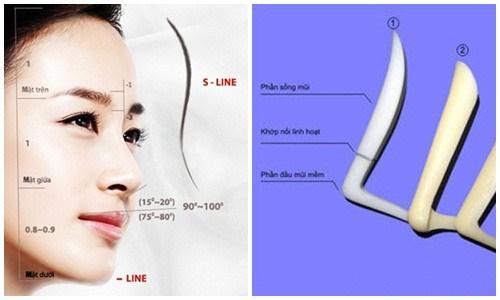Mũi thế nào là đẹp với Công nghệ nâng mũi S Line