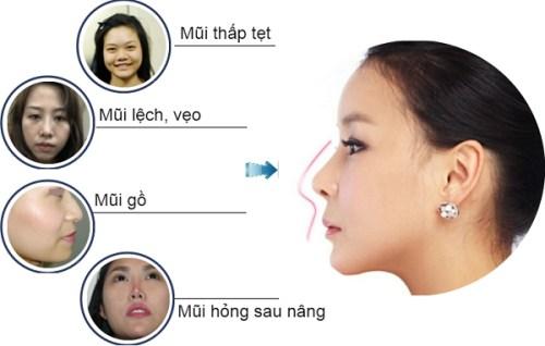 """""""SANG"""" lên nhờ phương pháp nâng mũi đẹp không góc chết 3"""