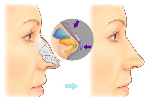 Nâng mũi bọc sụn có vĩnh viễn không? Nghe bác sỹ giải đáp & tư vấn