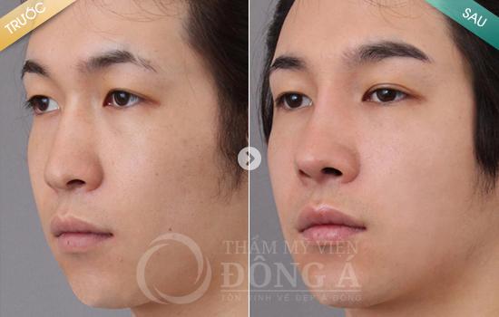 Hình ảnh trước sau thẩm mỹ mũi 5