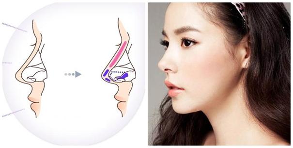 Nâng mũi sụn tự thân cho hiệu quả ổn định lâu dài