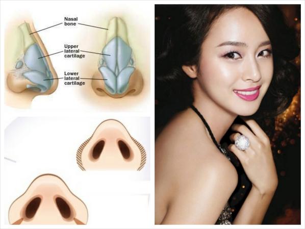 Thu nhỏ cánh mũi nội soi cho việc mũi thon gọn tự nhiên
