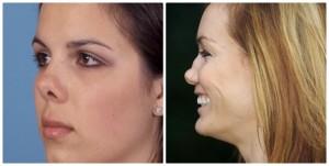 Phẫu thuật thu gọn cánh mũi cho mũi đẹp tự nhiên
