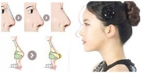 Sửa mũi S line – Bí mật về sắc đẹp của sao Hàn