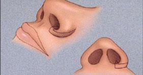 Thu hẹp cánh mũi giá bao nhiêu?