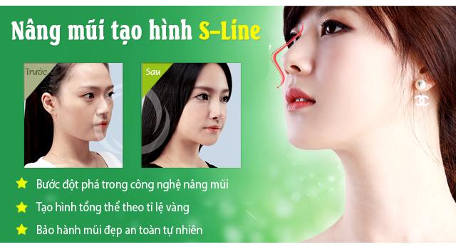 Công nghệ nâng mũi tạo hình S Line là cách làm mũi thon gọn hơn