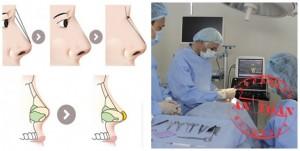 Phẫu thuật thẩm mỹ mũi giá bao nhiêu tiền?