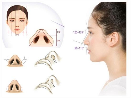 Cắt cánh mũi có an toàn không?