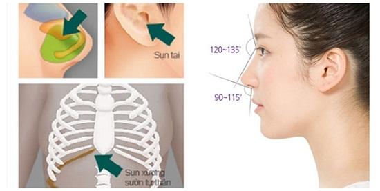 Nâng mũi bằng sụn tự thân sử dụng sụn sườn, sụn tai và sụn vách ngăn