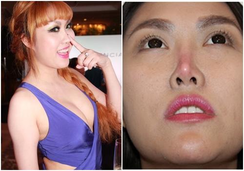 Nâng mũi bằng sụn tự thân có thể khiến chức năng mũi suy giảm, mất thẩm mỹ (hình minh họa)